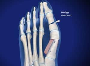 Bunion Correction with Scarf and Akin Osteotomy – Breg, Inc