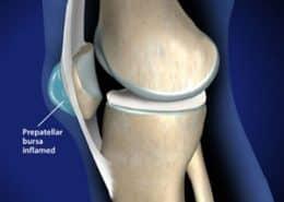 kneecap bursitis