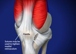Patella sutures