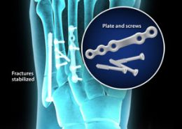 Fractures stabilized - plate and screws