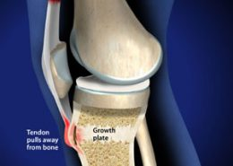 Tendon pulls away from bone