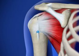 Mini-Open Rotator Cuff Repair