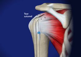 Rotator Cuff Tear sutured