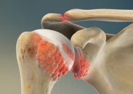 Osteoarthritis of the Shoulder