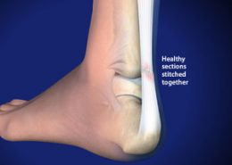Achilles Tendon healthy sections stitched together