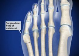 Surgeon frees head of metatarsal